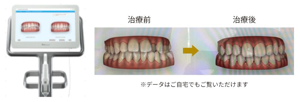 その場で治療後の歯並びが見れます